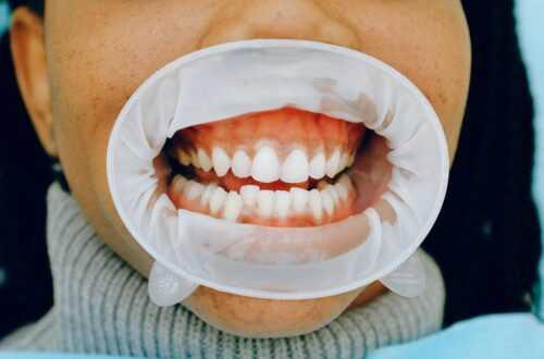 lekarz periodontolog